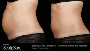 SculpSure Fat Reduction Before and After