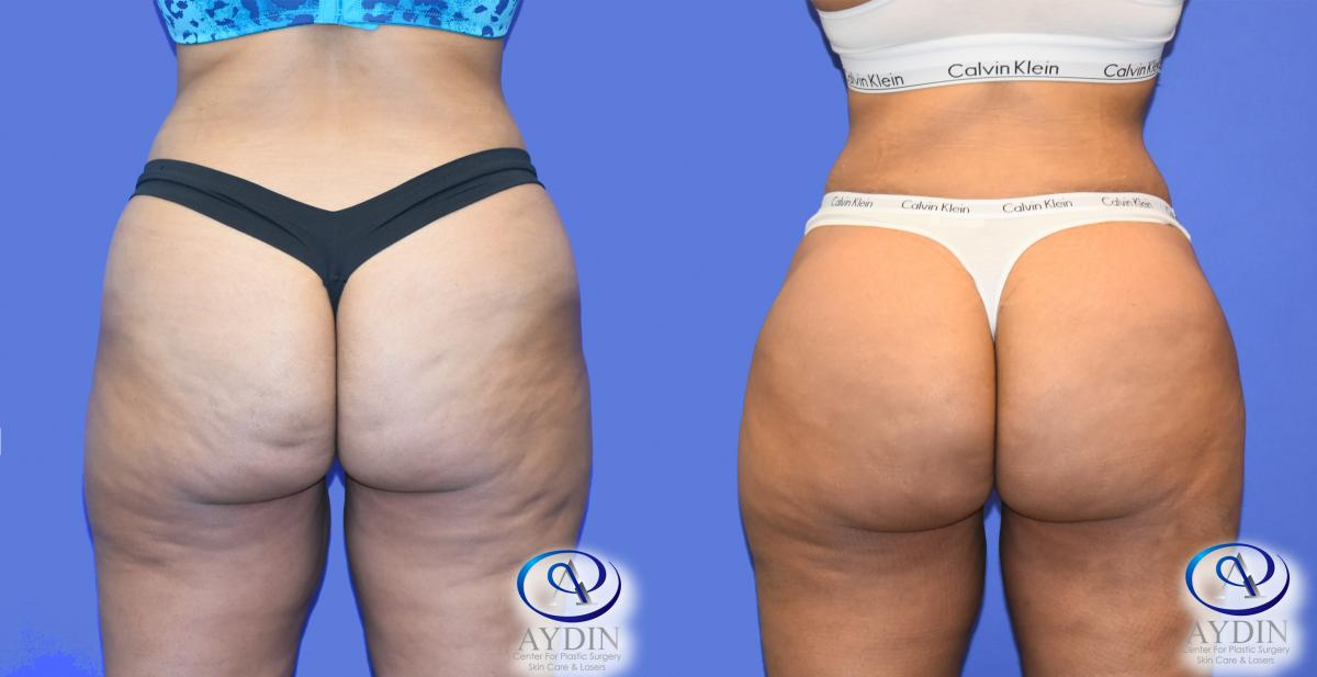 Butt Augmentation Before and After