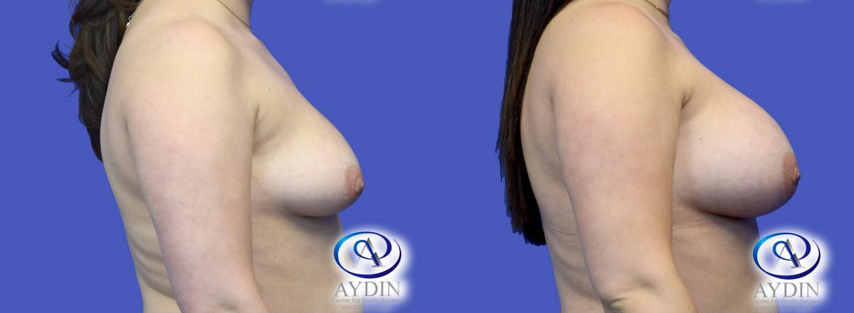 Breast Augmentation Side View