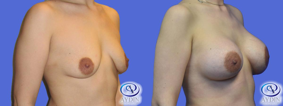 Breast Augmentation Lateral View