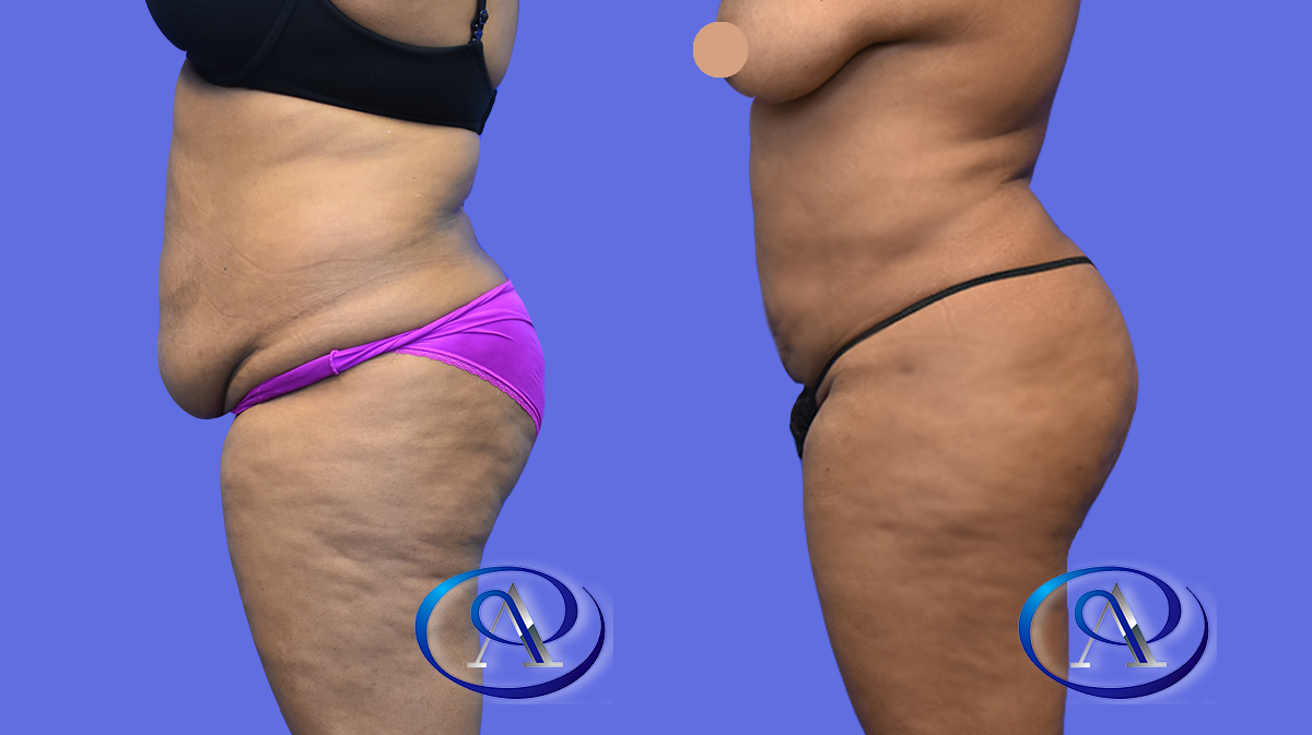 Liposuction to upper & lower abdomen and flanks