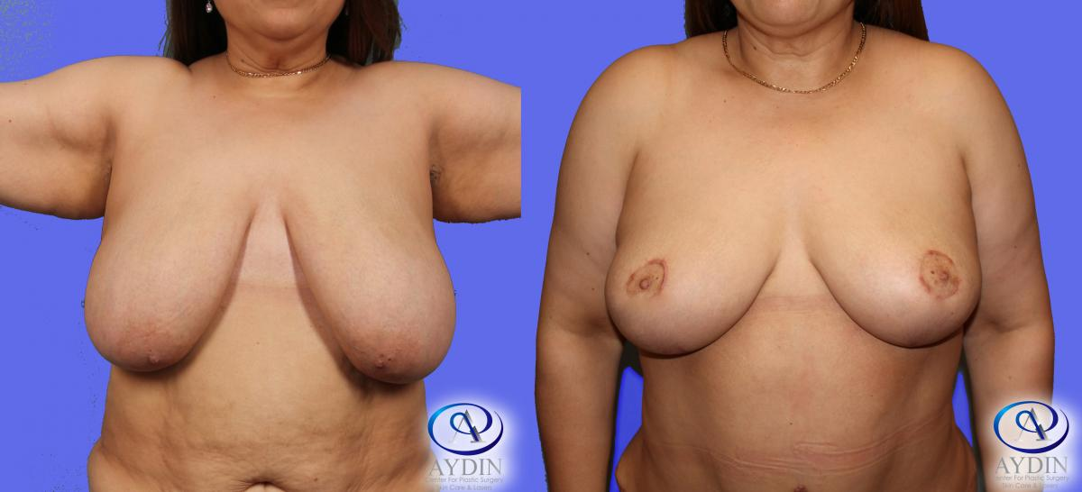 Bilateral Breast lift with anchor incision