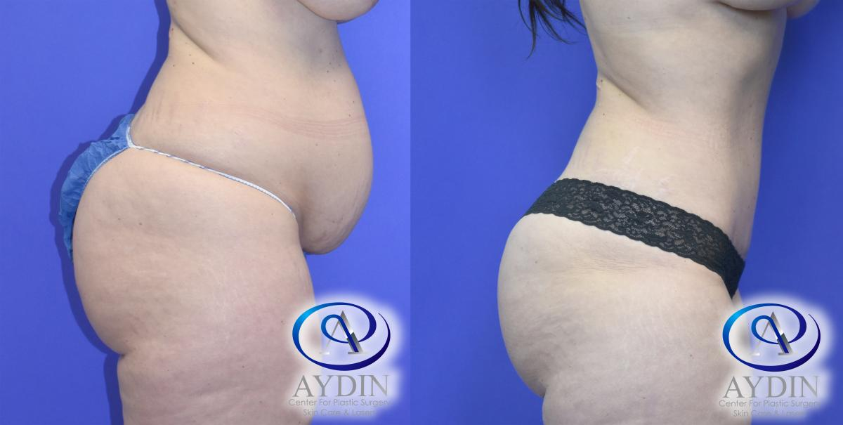 Mommy Makeover: Liposuction, Tummy Tuck, and *Breast Augmentation (*Not Shown)
