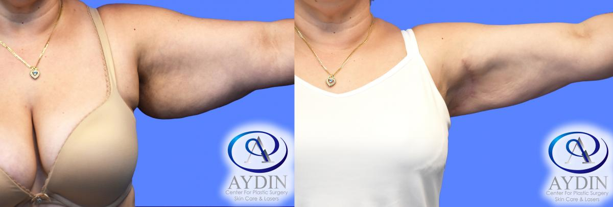 Left Arm Liposuction
