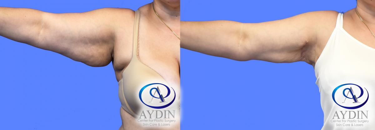 Right Arm Liposuction