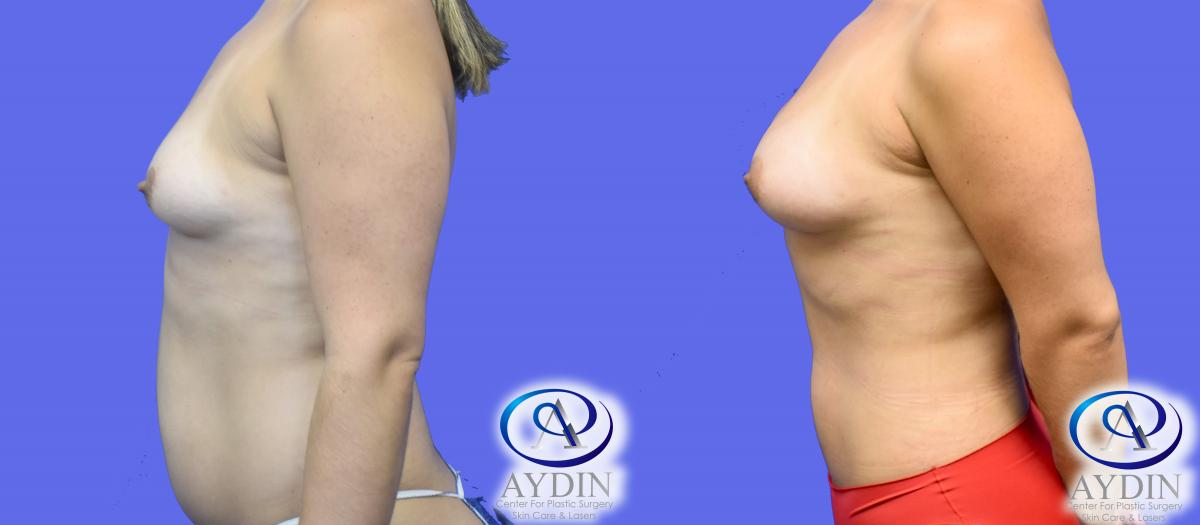 Left View Fat Transfer using Liposuction to Breasts