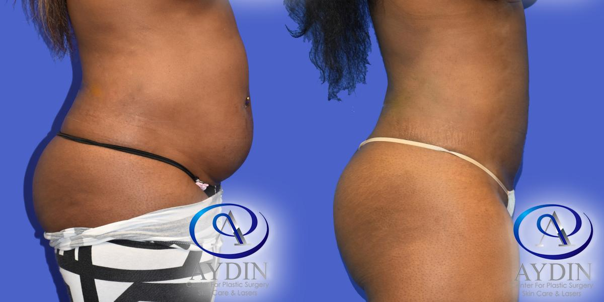 Right Side View of Liposuction to upper & lower abdomen and flanks