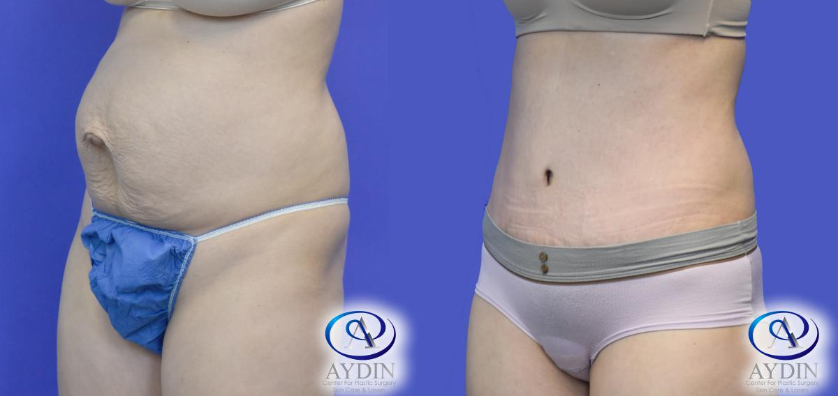 Tummy tuck and lipo hernia repair lateral