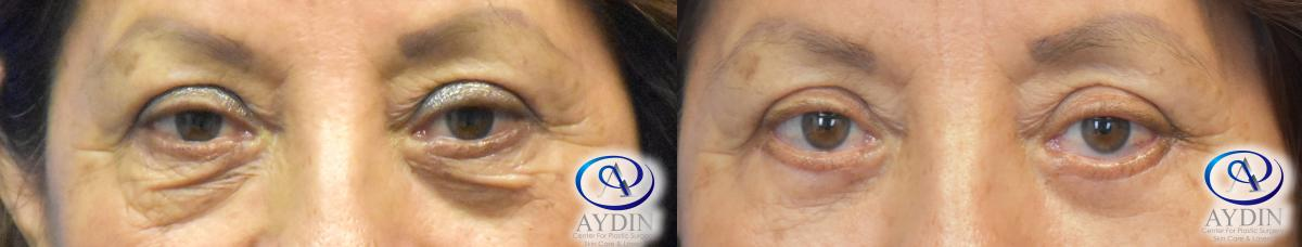 Blepharoplasty: Upper & Lower Eyelid Surgery