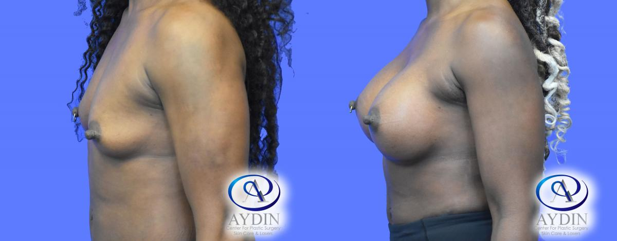 Breast Augmentation Left View with Silicone Implants