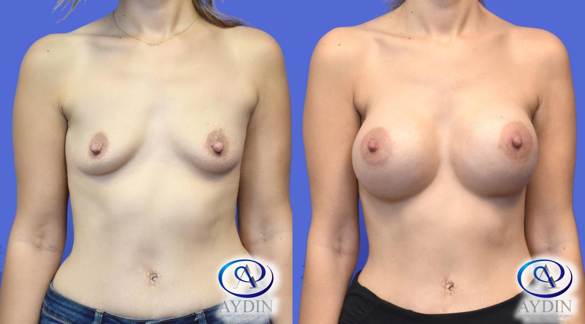 Breast Augmentation using Silicone Implants