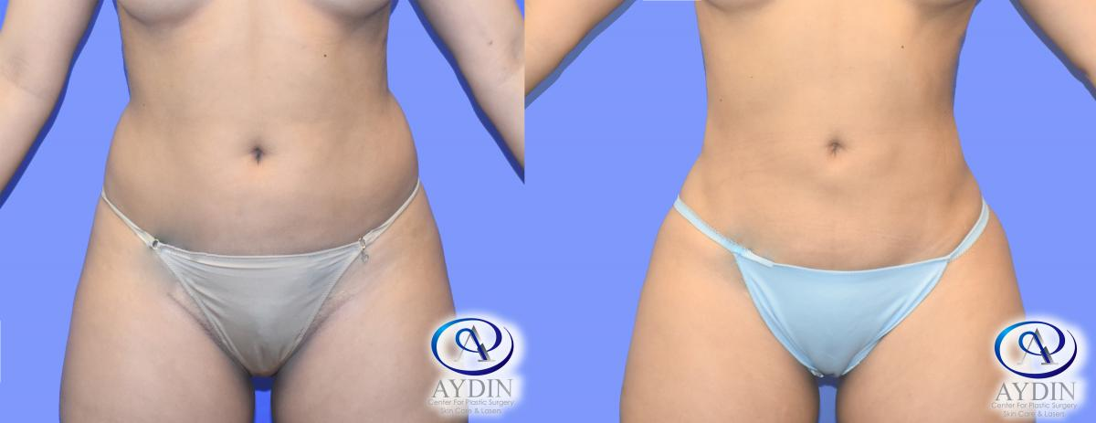 Liposuction Front Before After