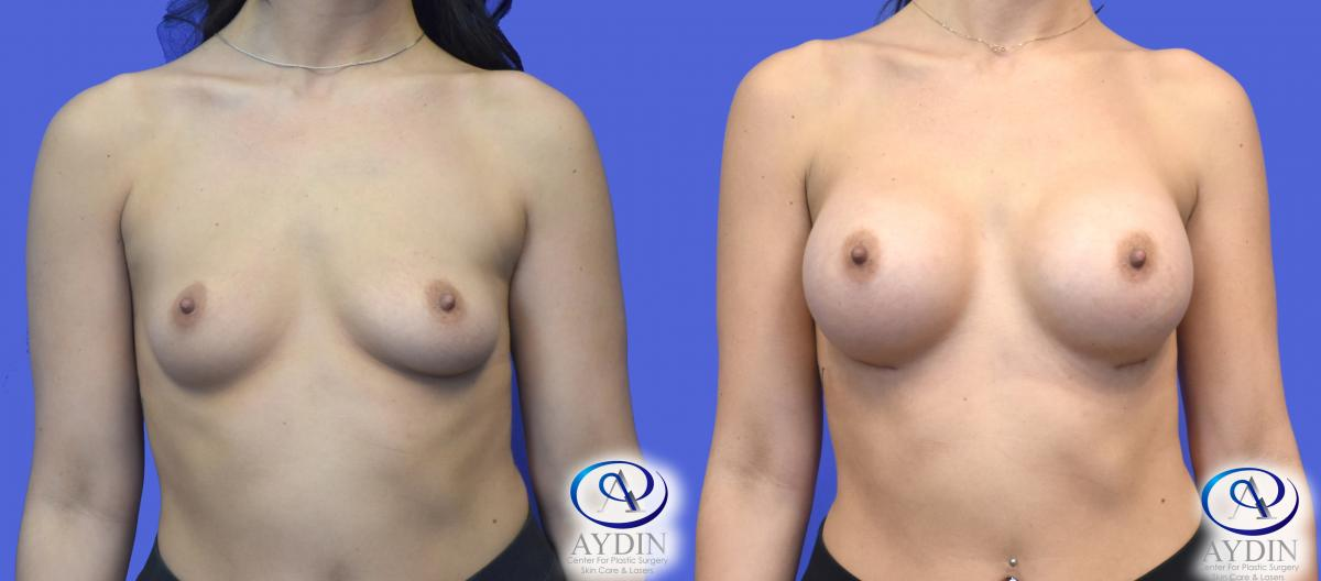 Breast Augmentation with Saline Breast Implants
