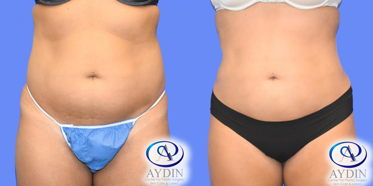 Liposuction to abdomen and flanks