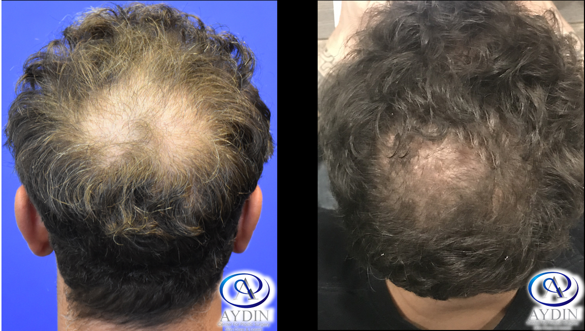 NeoGraft Hair Restoration/Hair Transplant Procedure