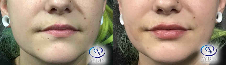Lip Fillers Juvederm Ultra Plus