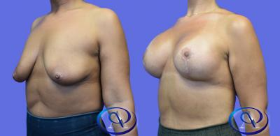 Breast List with Implants