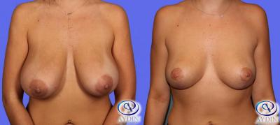 Bilateral breast lift with lollipop incision