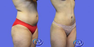 Liposuction to lower abdomen, back, and flanks