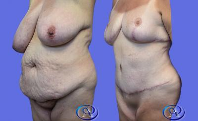 Mommy Makeover: Liposuction, Tummy Tuck, and Breast Reduction