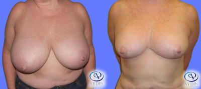 Breast Reduction Procedure