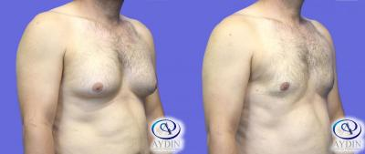 Gynecomastia, Male Breast Reduction  Lateral