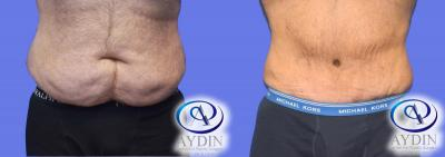 Male front Tummy Tuck before and after