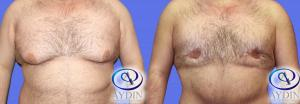 Gynecomastia, Male Breast Reduction