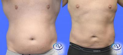 Male Liposuction Lower Abdomen and Flanks
