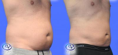 Male liposuction to Lower Abdomen and Flanks