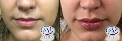 Lip Fillers Juvederm