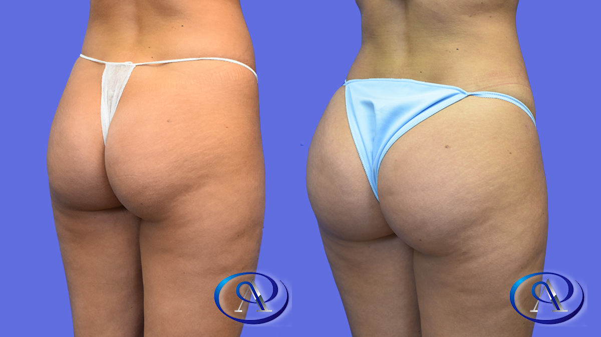 Butt Augmentation: Brazilian Butt lift
