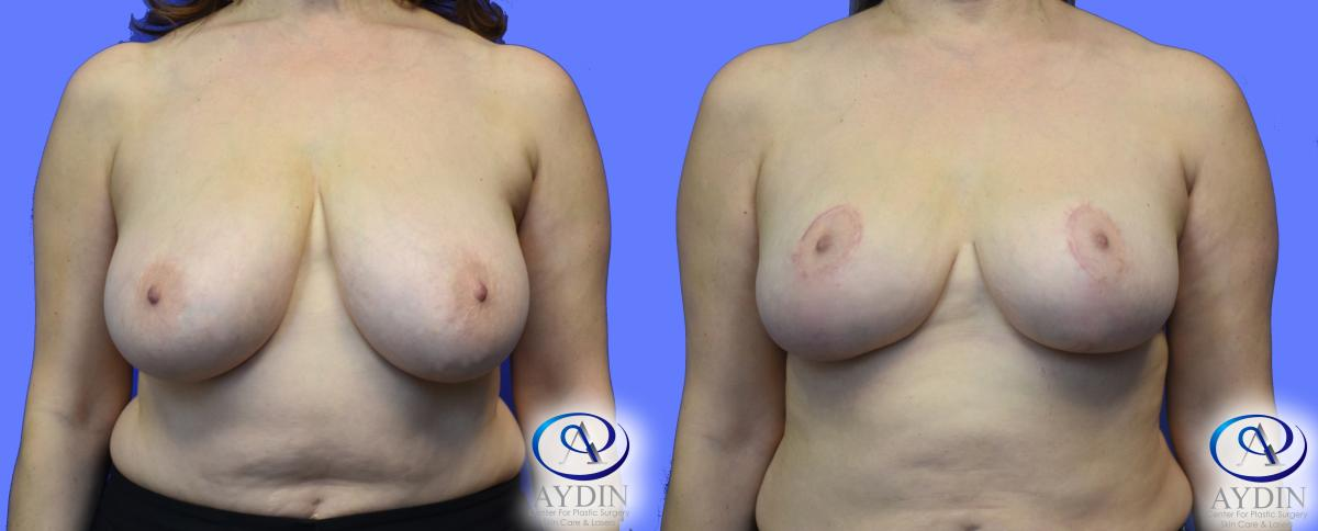 Breast reduction paramus nj