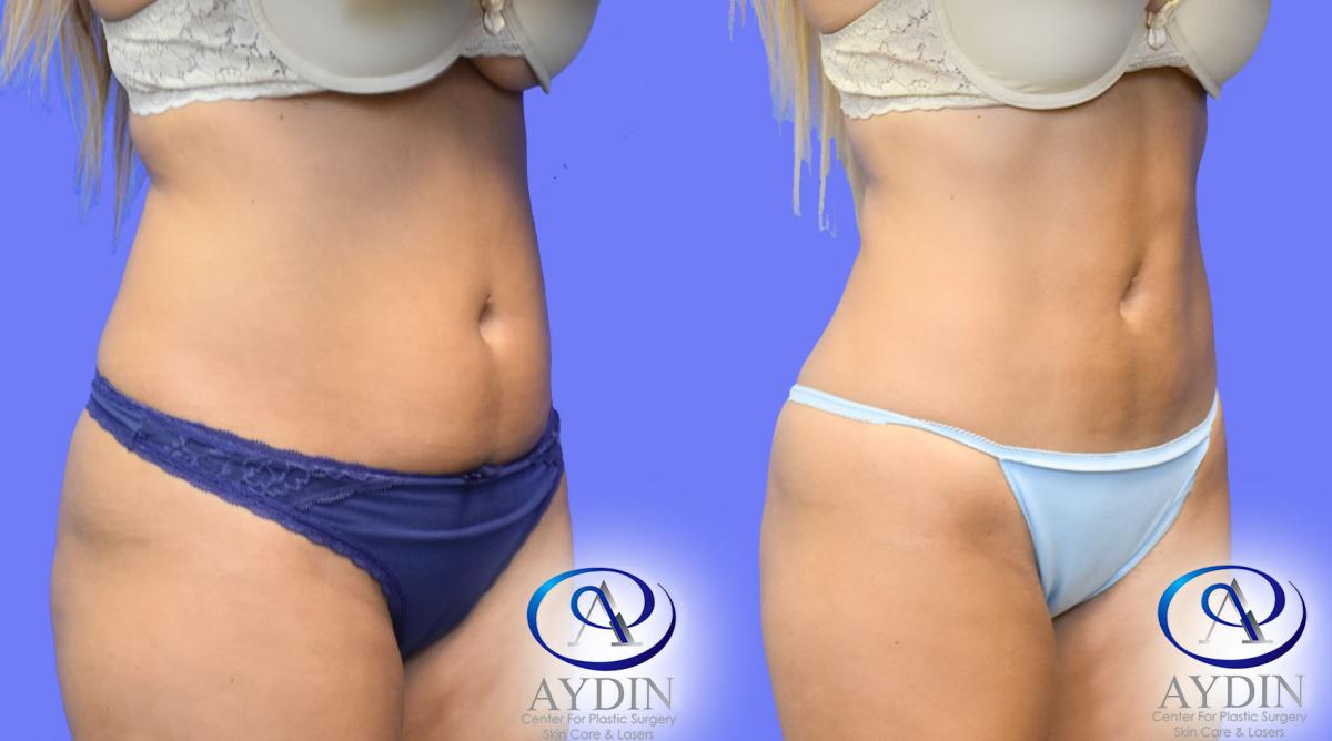 Liposuction to lower abdomen and flanks