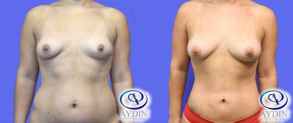 Fat Transfer using Liposuction to Breasts