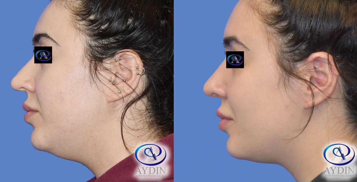 Rhinoplasty with Chin Lipo