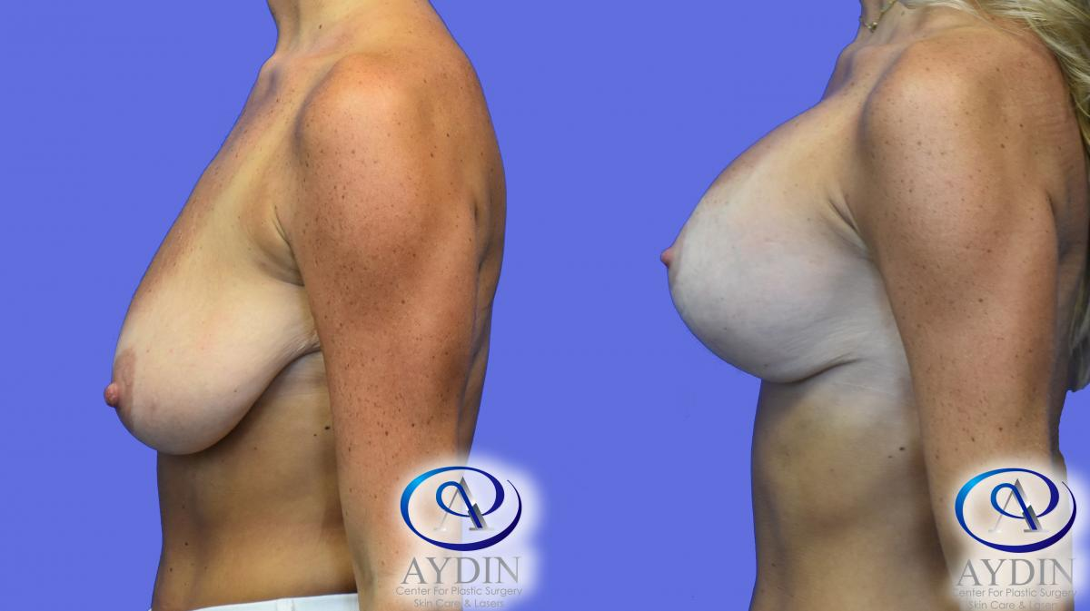 Breast Lift with Silicone implants side view