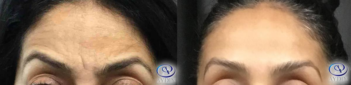 Wrinkle Reduction and symmetrical brows transformation: Dysport