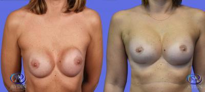 Breast  Implant Exchange with Silicone Breast Implants