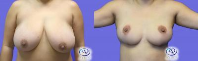 Breast Reduction Procedure Before and After