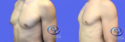 Gynecomastia, young male before and after