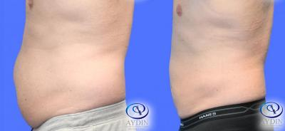 Male Liposuction Lower Abdomen and Flanks Side View