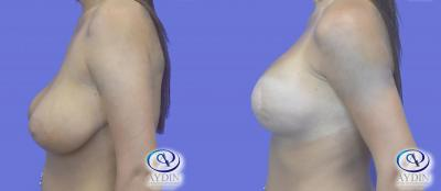 Breast Lift with implants side view