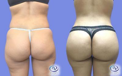 Butt Augmentation: Brazilian Butt lift