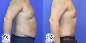 Male Tummy Tuck Side