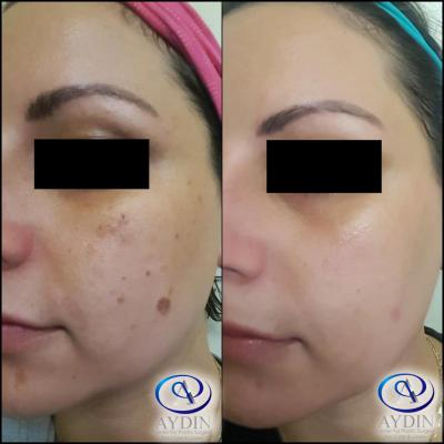 IPL Photofacial:  Reduction of brown spots and hyperpigmentation
