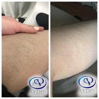 IPL Photofacial: reduction of spider veins on legs