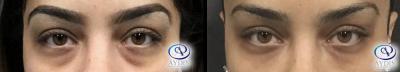 Under Eye Filler: Restylane