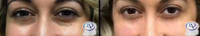 Under Eye Filler: Juvederm